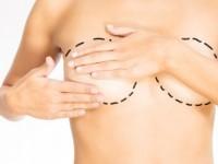Brustvergrößerung weiterhin beliebteste OP