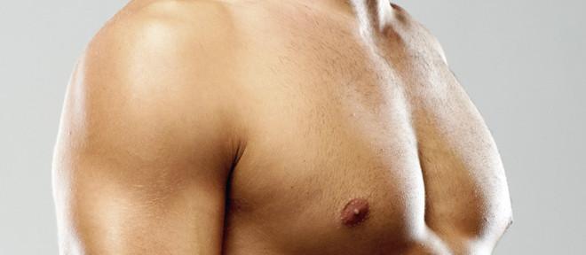 Brustkorrektur beim Mann: Behandlung der Gynäkomastie